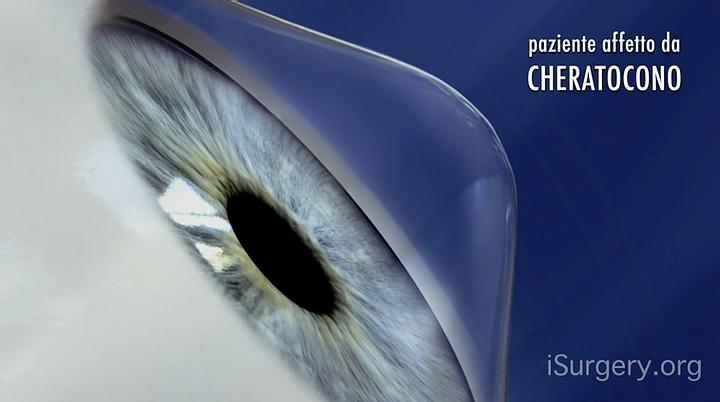 Read more about the article Cheratocono, Cross-Linking e Anelli Intrastromali