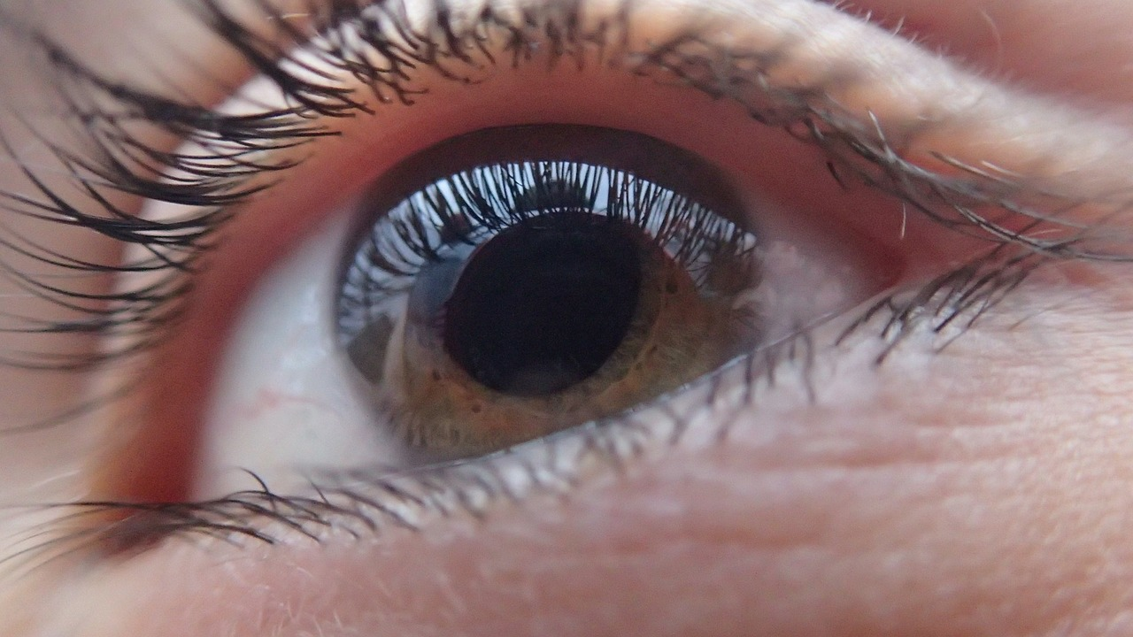 Read more about the article Il Glaucoma